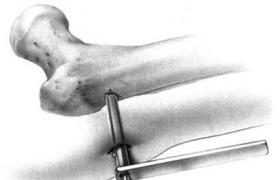 单臂外固定架股骨干延长术