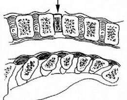 经前路颈椎椎间盘切除、椎体间植骨融合术