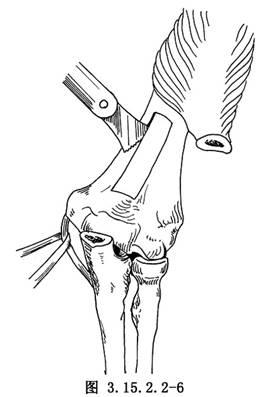 盆骨外固定术