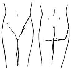 半骨盆截除术