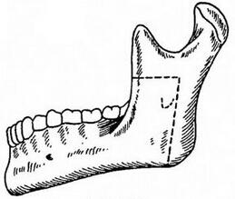 下颌升支截骨术