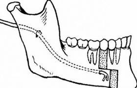 下颌体梯形截骨术