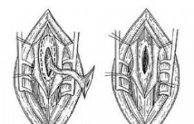 拭腰骶部在那个位置�_腰骶部潜毛窦切除术