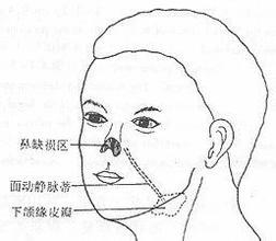 前臂皮瓣耳再造术
