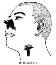 前臂游离皮瓣全鼻成形术