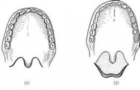 先天性鼻后孔闭锁成形术