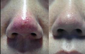 酒渣鼻及鼻瘤整形术