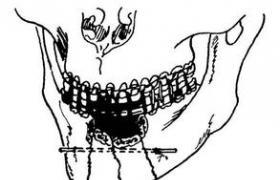 上颌骨Le-fortⅠ型截骨马蹄形植骨牙种植修复术