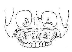 全上颌骨缺损种植义颌修复术