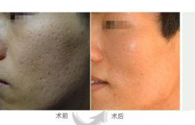 皮肤磨削术