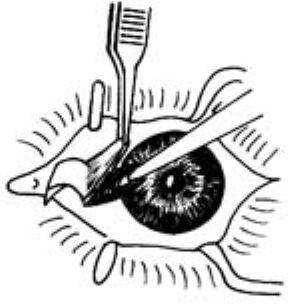 白眼球上长了胬肉图片_复发性翼状胬肉手术