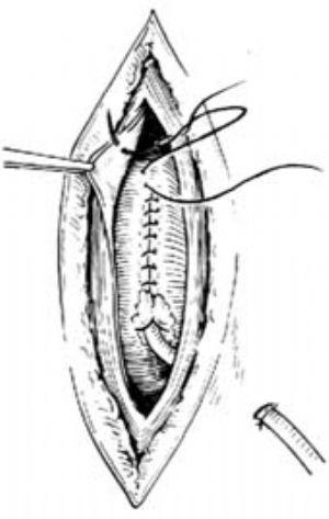肠壁的结构示意图