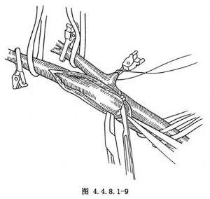 中动脉管壁结构手绘