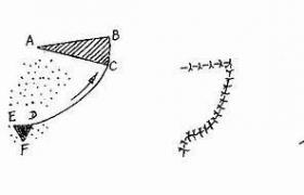 唇皮瓣移植术