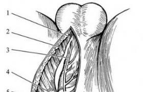 盆骨部分切除术