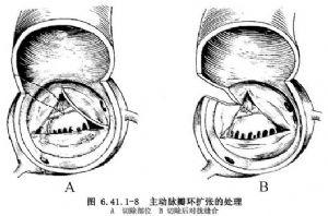 心脏瓣膜置换术