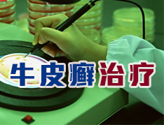 北京治疗牛皮癣最好的医院是哪家