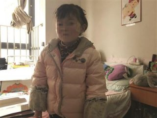 8岁女童患上怪病:皮肤一碰就烂,还会生水疱血疱