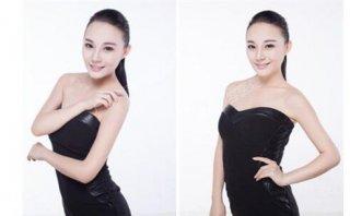 女子首次公开整容照片 郑州美莱专家技术领先亚洲