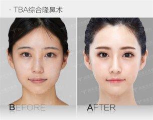 亲身体验T.B.A综合隆鼻,原来改变之后可以这么美 [唐振利院长]