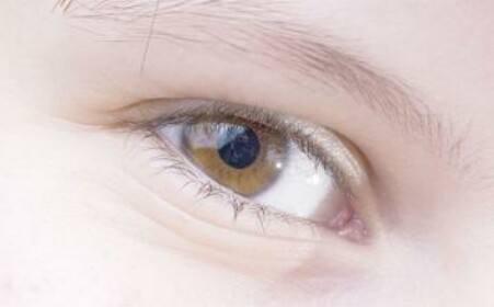 角膜炎的预防和治疗