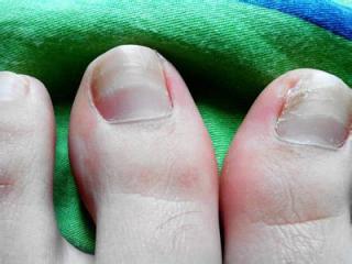 得了灰指甲怎么治 灰指甲的治疗方法