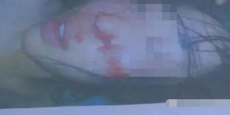 女大学生被男友打到重伤失智 男方:她喜欢被抽,要求我打!