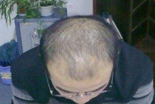改善脱发问题只需要头部护理和黑尔霸生发仪