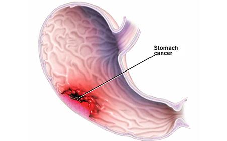 女性胃癌的晚期癥狀