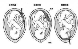 怎么预防前置胎盘的出现