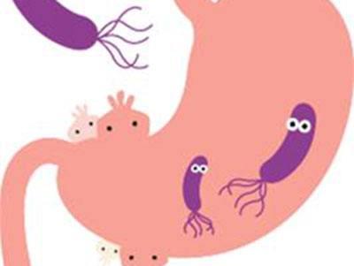现幽门螺旋杆菌感染导致胃癌新机制