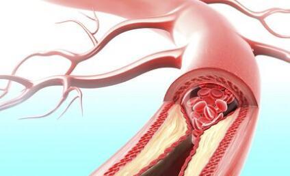 心脑健康,一定要保护好血管