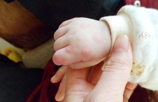 家长注意力,孩子有这些症状就有可能患上了手足口病