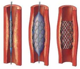 研究表明,颈动脉支架前需要服用高剂量他汀!