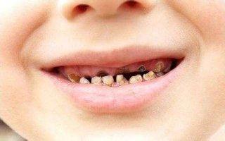 据调查显示,我国儿童锯齿发病率增高