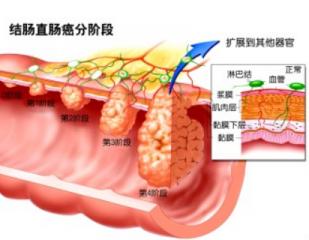 细菌在促进结肠癌产生中起着关键作用