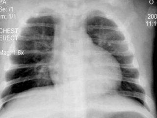 美医首次成功移植呼吸中的肺
