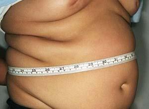 青春期肥胖