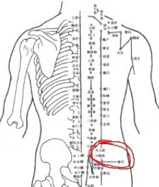臀部可触及上移的股骨头
