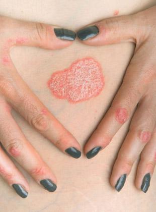 银屑病的症状是什么
