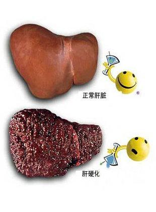 肝硬化肝功能正常