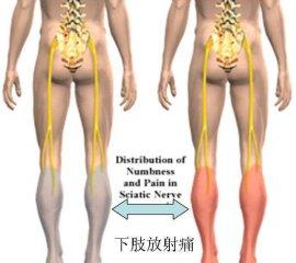 腰椎间盘突出能引发下肢放射性疼痛