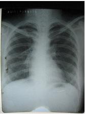 肺结核复发症状是怎样