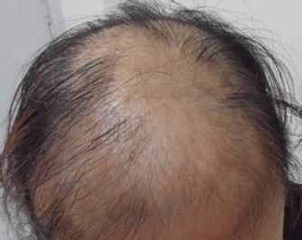 脱发是由什么原因造成的呢