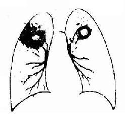 肺结核传染途径有哪些?