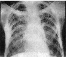 肺结核传染吗