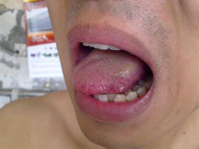 口腔溃疡久治不愈 或是白塞病