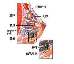 如何对待乳房肿块?