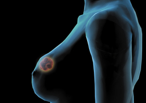 远离乳腺癌的五个注意方面