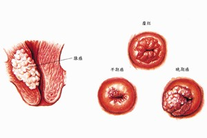 宫颈癌的早期症状有哪些?